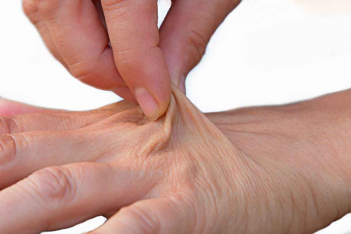 pinching dehydrated skin
